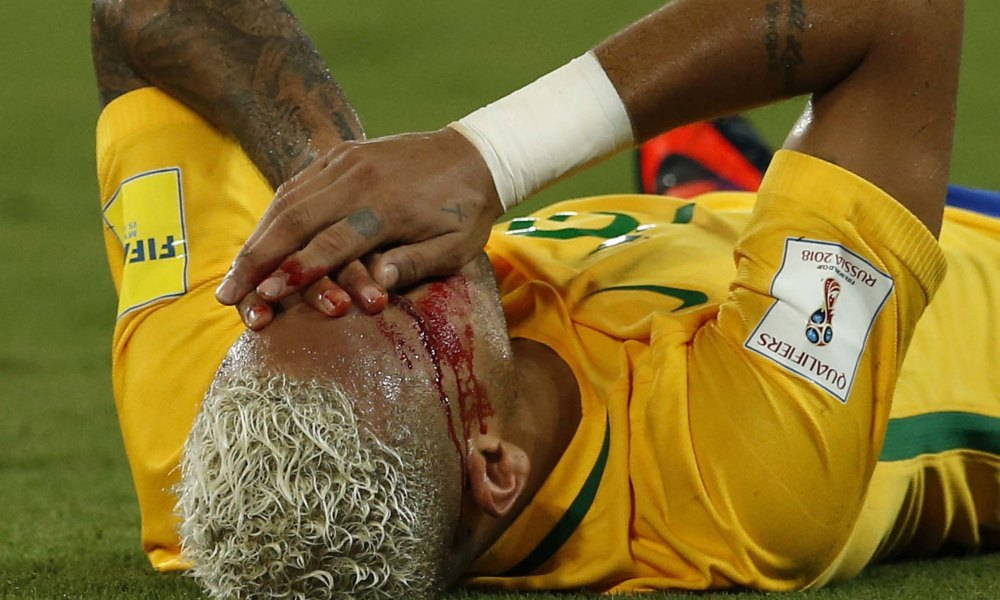 Neymar lies with his face bleeding on the pitch.