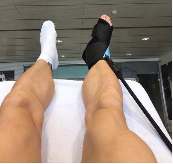 gareth-bale-injury-update-instagram